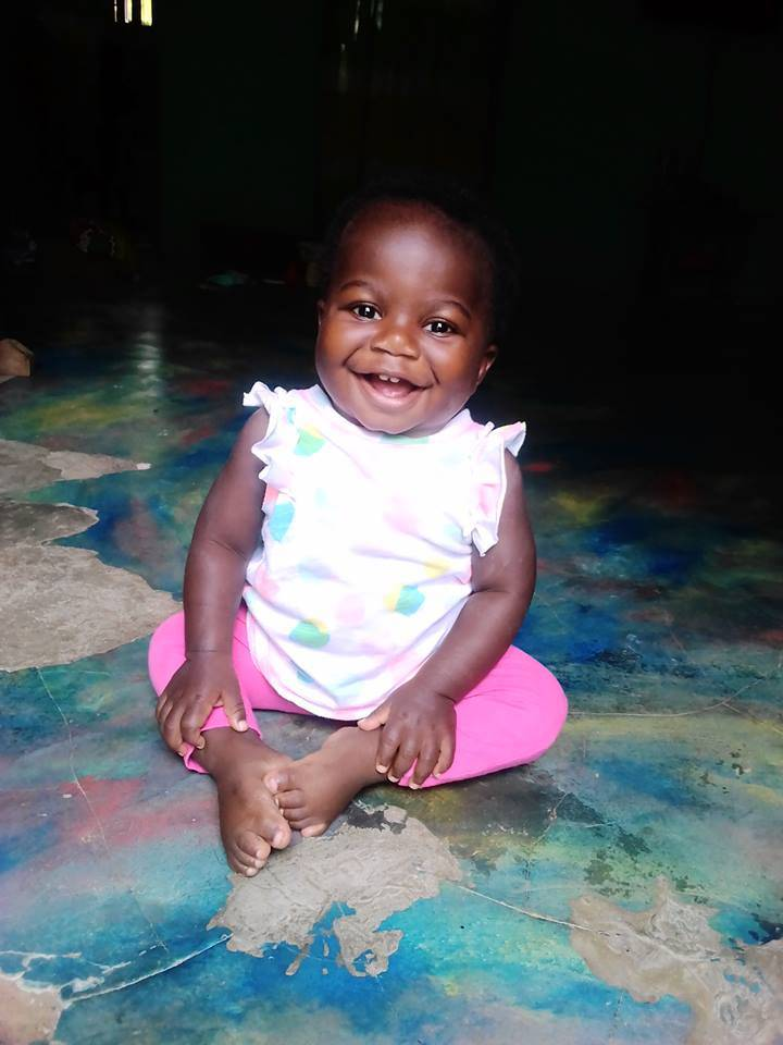 Born with an extremely rare birth defect, Dominque underwent a surgery at Advocate Children's Hospital in Park Ridge to remove an extra set of legs, feet and pelvic bones growing out of the base of her neck. A year later, the 2-year-old is healthy and happy.